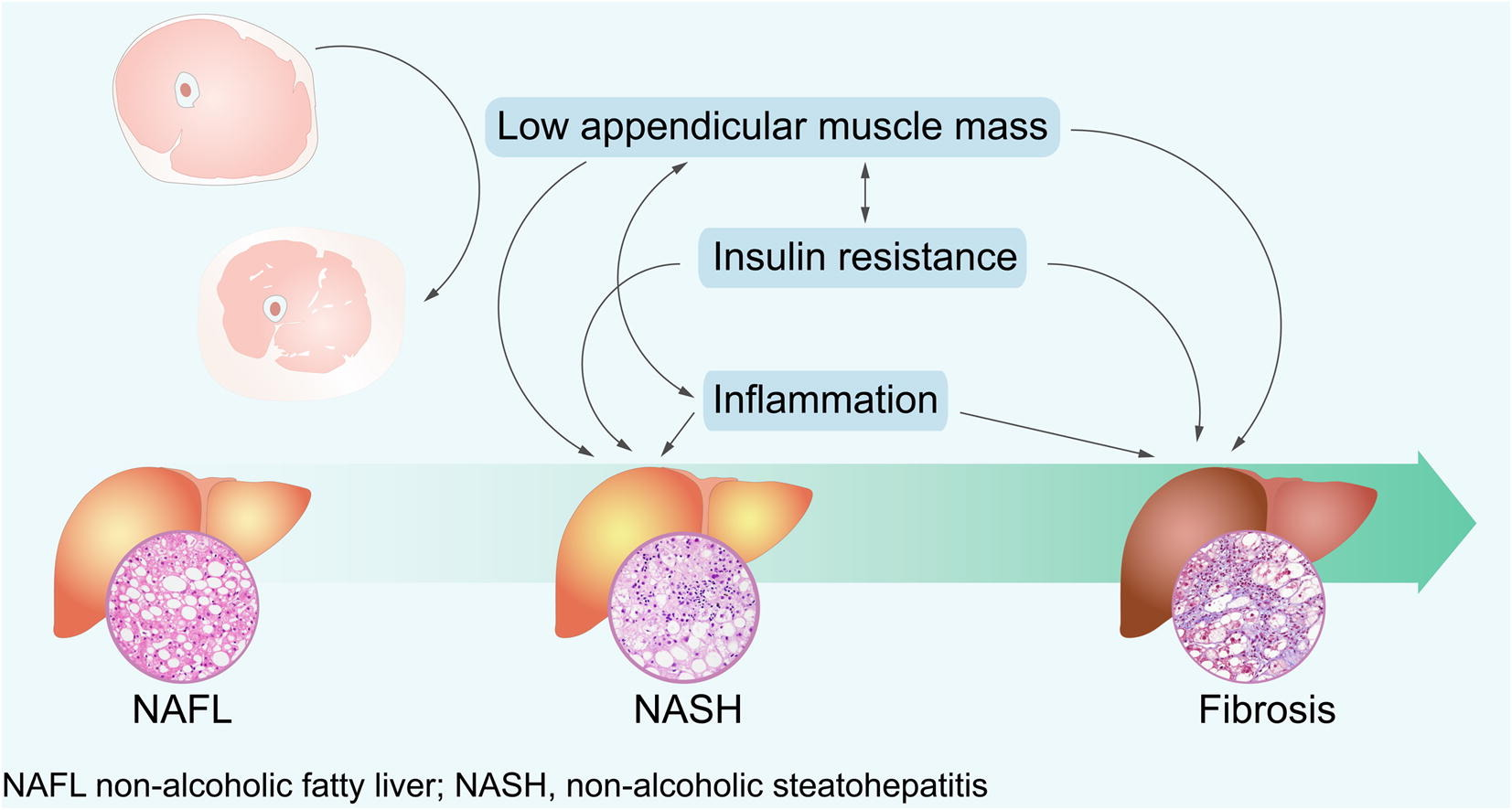 Sarcopenia is an independent risk factor for non-alcoholic steatohepatitis and significant ...